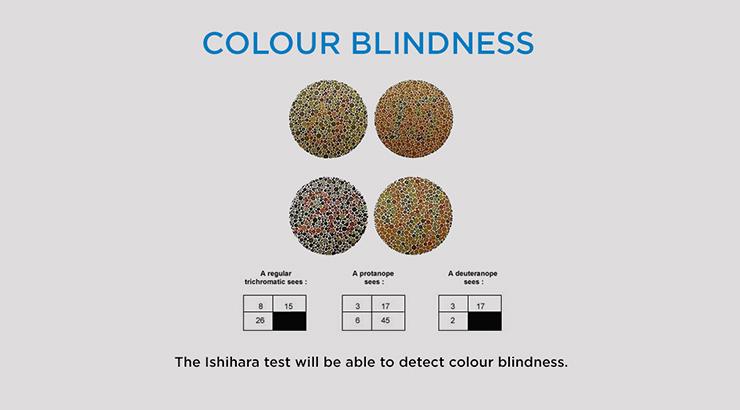 short-sightedness-slideshow-image5